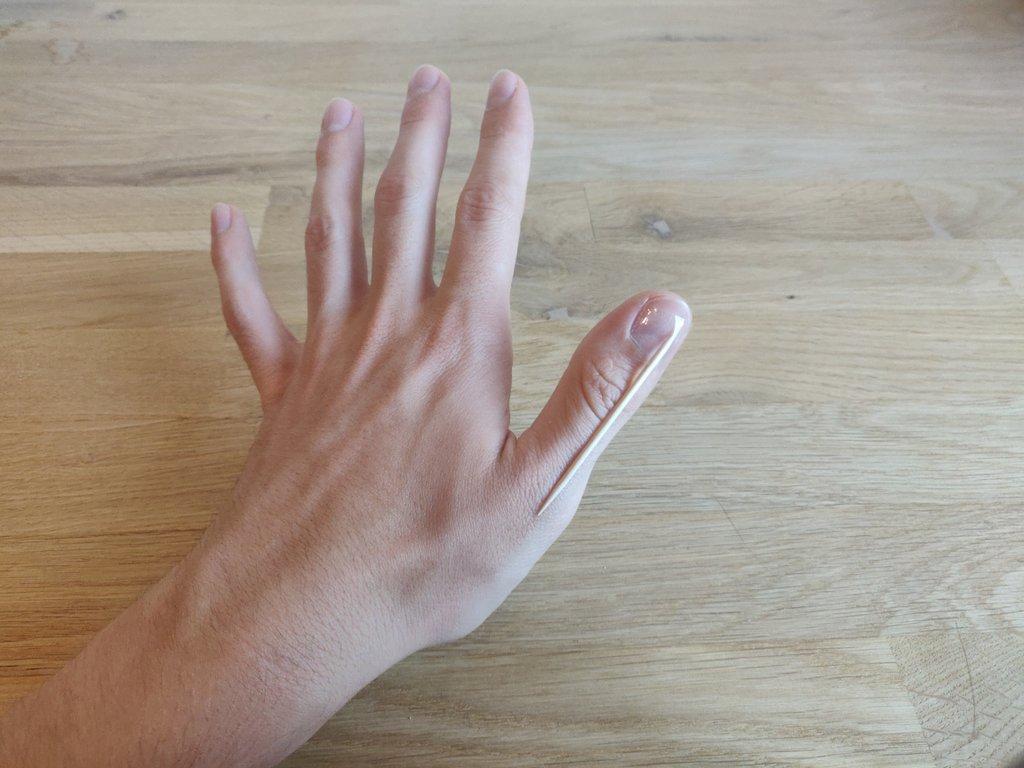 Wenn du deine Hand öffnest, verdeckt dein Daumen den Zahnstocher.